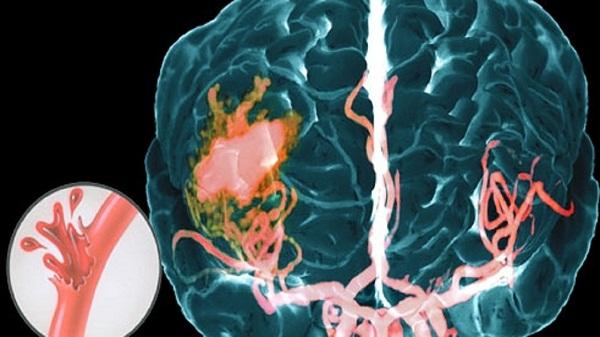 геморрагический инсульт миниатюра