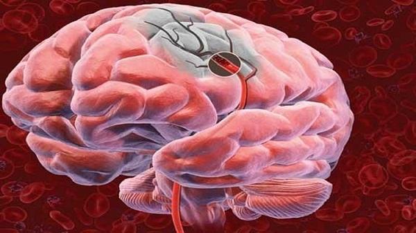 ишемический инсульт миниатюра