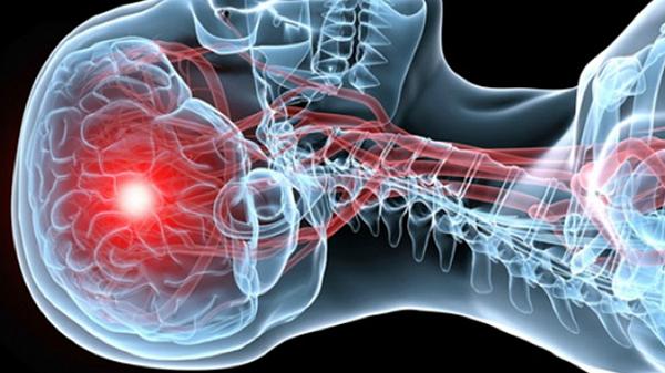 Ишемический инсульт кома прогноз