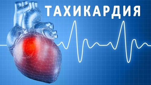 lechenie tahikardii miniatyura - Tratamento para taquicardia com remédios populares e receitas eficazes