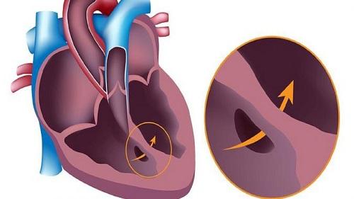 врожденный порок сердца миниатюра