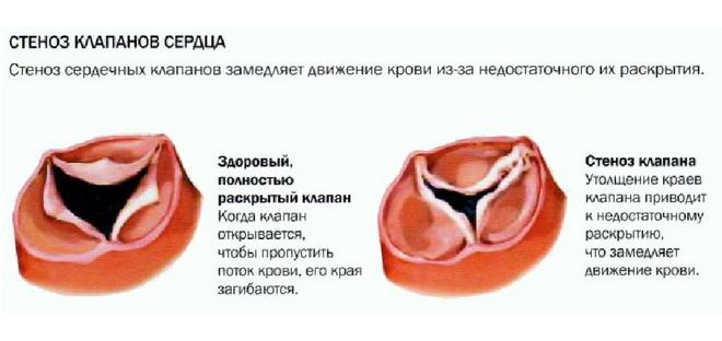 Cтеноз клапанов сердца