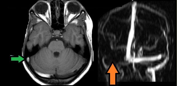 МРТ при тромбозе синуса