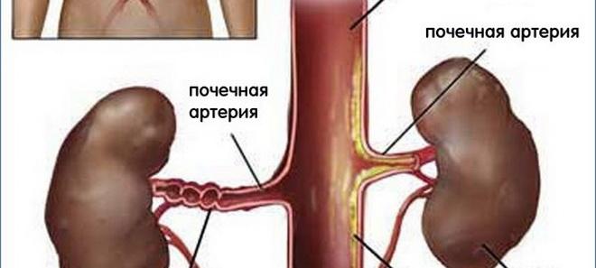 Почечная артерия