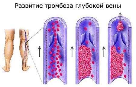 Развитие тромбоза глубоких вен