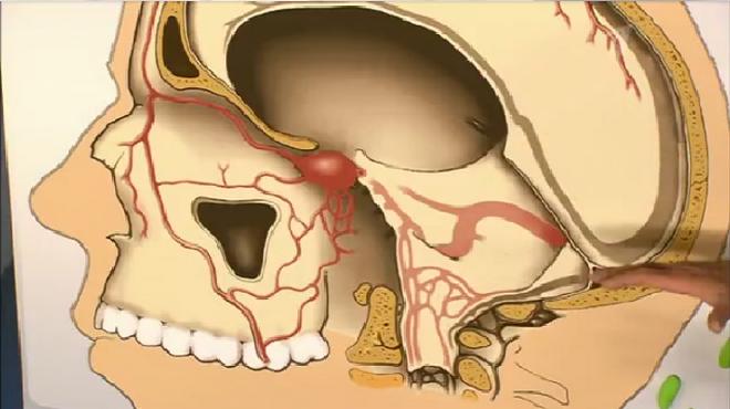 Тромбофлебит лицевых вен