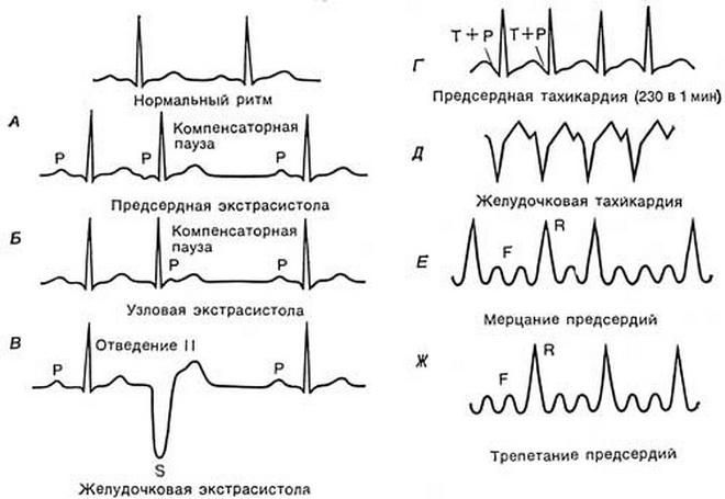 ЭКГ при аритмии сердца