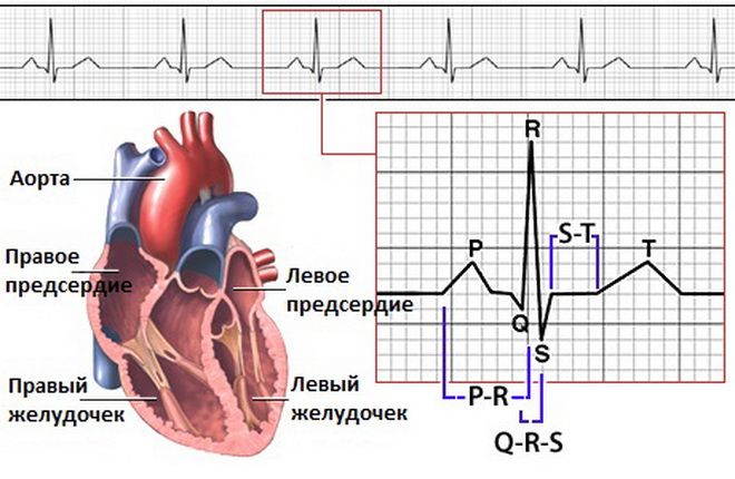 Нарушение работы сердца
