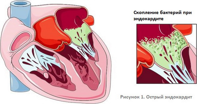 Острый эндокардит