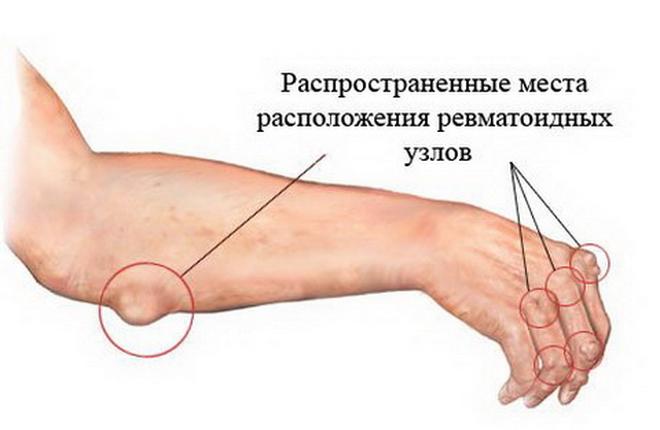 Расположение ревматических узлов