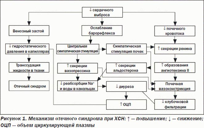 Механизи отечного синдрома при ХСН