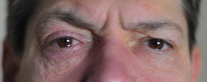 Отек лица при тромбозе синуса