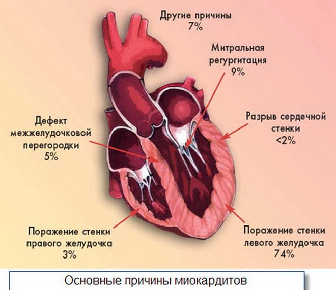 Причины миокардитов