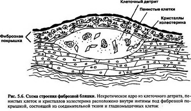 Фиброзная бляшка