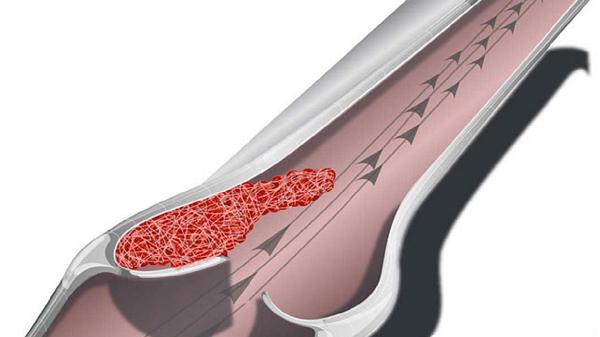 Артериальный тромбоз миниатюра