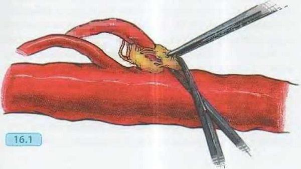 Стеноз чревного ствола брюшной аорты
