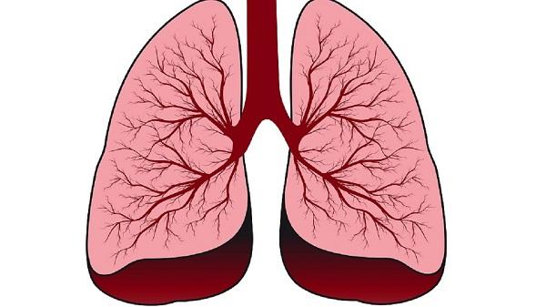 Тромбофлебит лёгких миниатюра