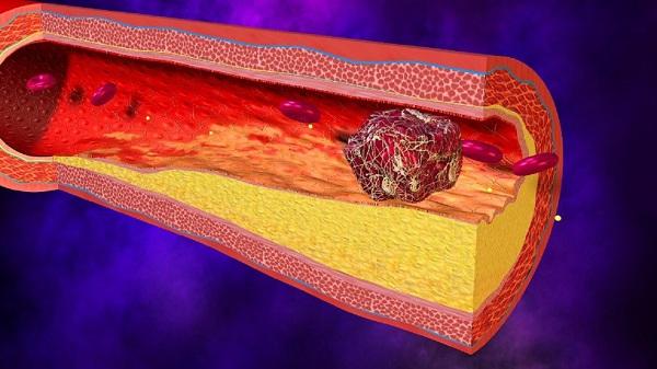 Тромбоз бедренной артерии миниатюра