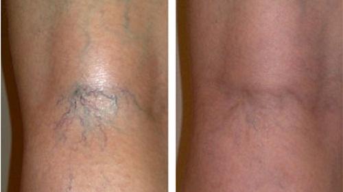 Тромбоз подколенной вены симптомы лечение