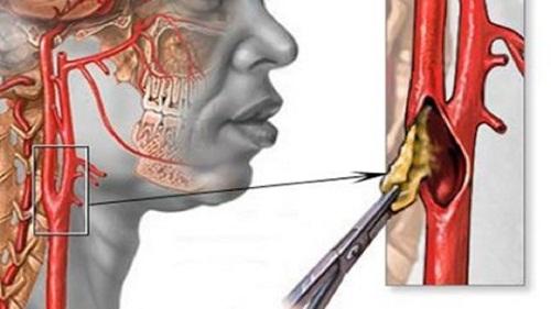 Тромбоз сонной артерии миниатюра