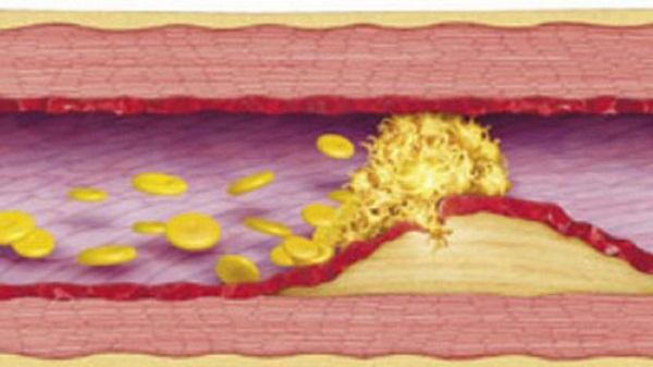 лечение тромбоза миниатюра