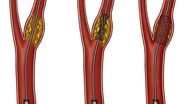 Стеноз почечных артерий - причины, симптомы, диагностика и лечение