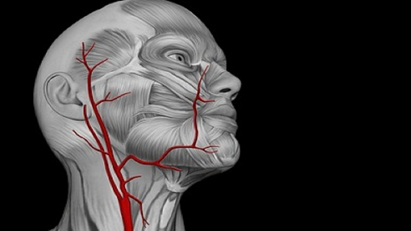 стеноз сонной артерии миниатюра