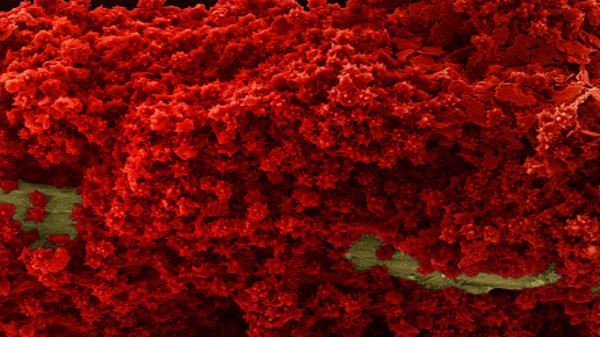 Тромбоцитопения – причины снижения уровня тромбоцитов в крови