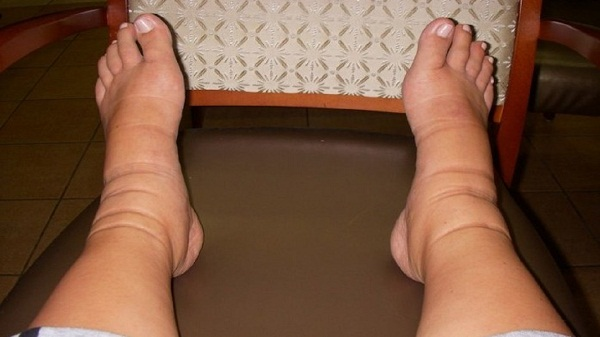 тромбоз ног миниатюра
