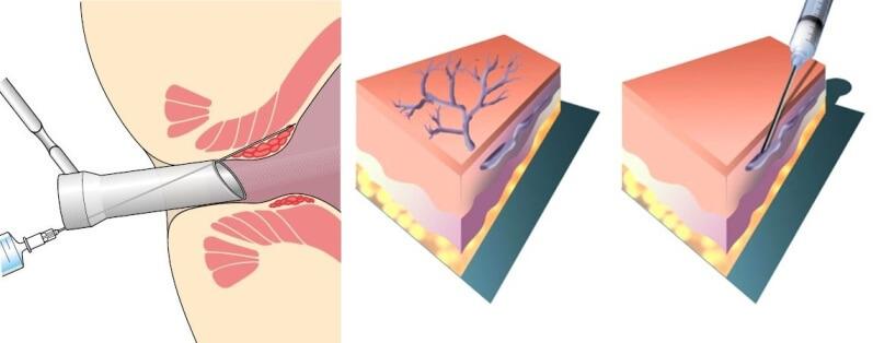Процедура склеротерапии геморроя