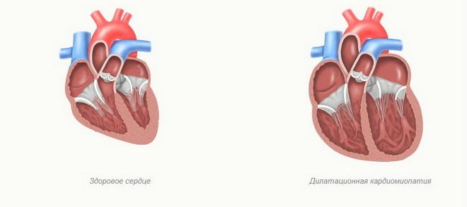Дистанционная кардиомиопатия