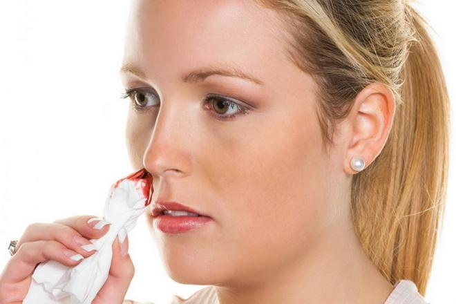 Носовое кровотечение