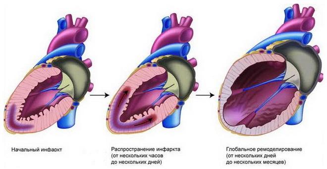 Распространение инфаркта