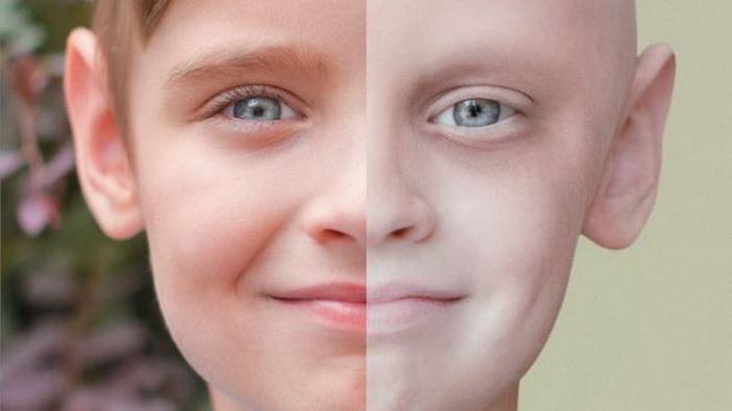 Симптомы лейкоза у детей