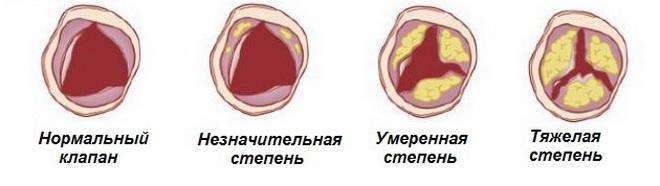 Степени аортального стеноза