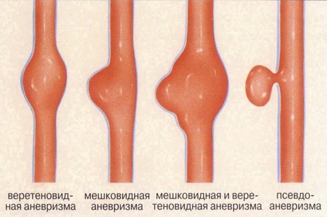 Типы аневризм
