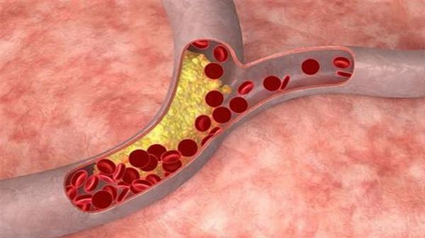 Ангиосклероз сетчатки миниатюра