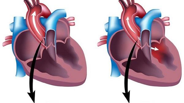 Пороки клапанов сердца миниатюра