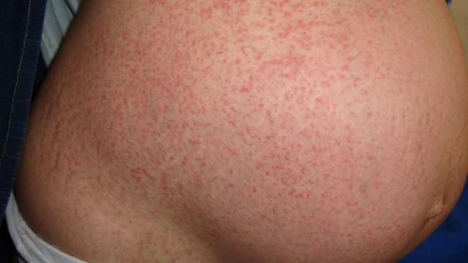 Аллергия при беременности