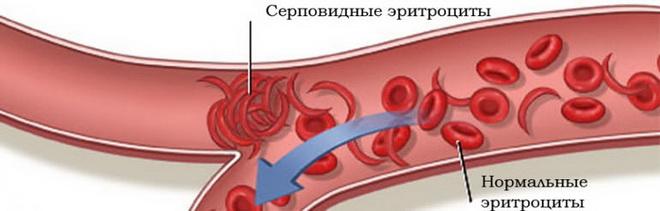 Анемия 1 степени