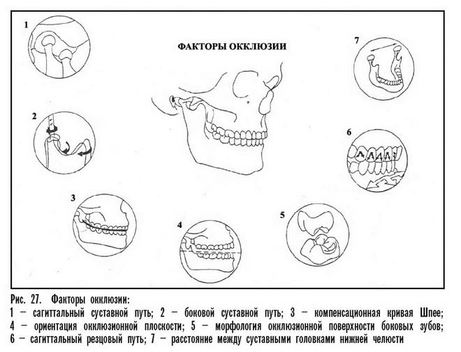 Факторы окклюзии