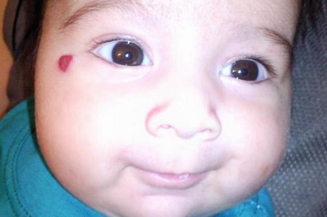 Гемангиома на лице