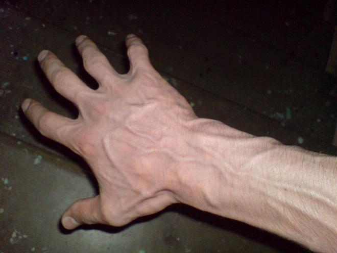 Варикоз на руках