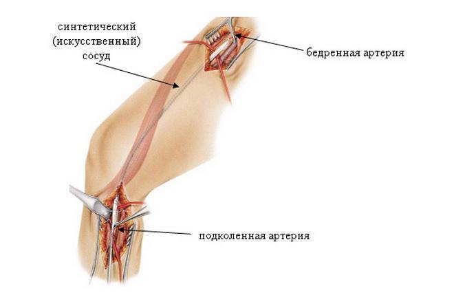 Бедренная артерия
