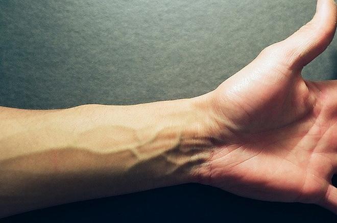 Проявление варикоза на руках