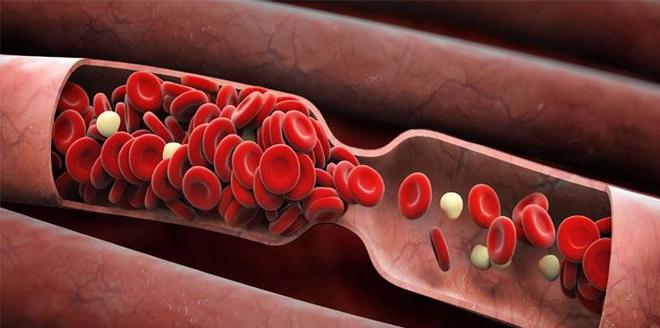 Замедление кровотока
