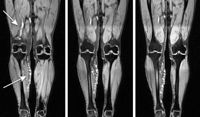 МРТ сосудов ног
