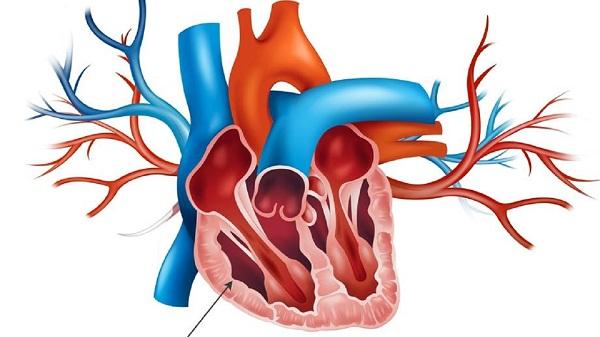 Гипертрофия правого желудочка миниатюра