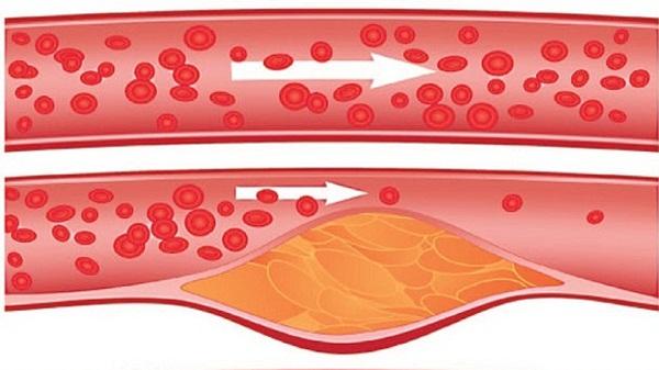 Нестенозирующий атеросклероз магистральных артерий головы