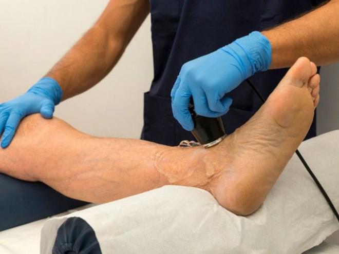 Лечение сосудов на ногах